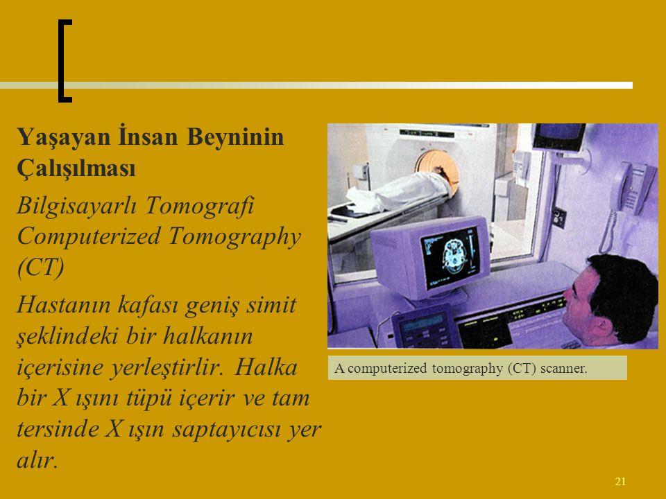 21 Yaşayan İnsan Beyninin Çalışılması Bilgisayarlı Tomografi Computerized Tomography (CT) Hastanın kafası geniş simit şeklindeki bir halkanın içerisin