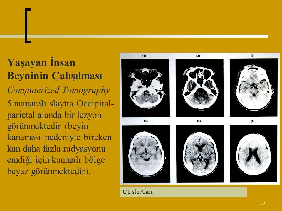 22 Yaşayan İnsan Beyninin Çalışılması Computerized Tomography 5 numaralı slaytta Occipital- parietal alanda bir lezyon görünmektedir (beyin kanaması n