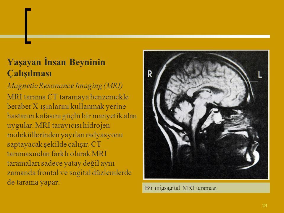 23 Yaşayan İnsan Beyninin Çalışılması Magnetic Resonance Imaging (MRI) MRI tarama CT taramaya benzemekle beraber X ışınlarını kullanmak yerine hastanı