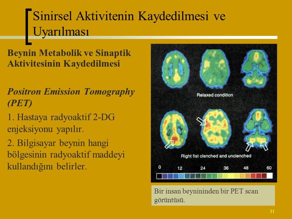 31 Beynin Metabolik ve Sinaptik Aktivitesinin Kaydedilmesi Positron Emission Tomography (PET) 1. Hastaya radyoaktif 2-DG enjeksiyonu yapılır. 2. Bilgi