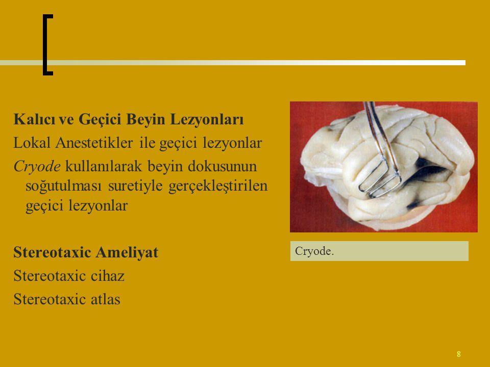 8 Kalıcı ve Geçici Beyin Lezyonları Lokal Anestetikler ile geçici lezyonlar Cryode kullanılarak beyin dokusunun soğutulması suretiyle gerçekleştirilen