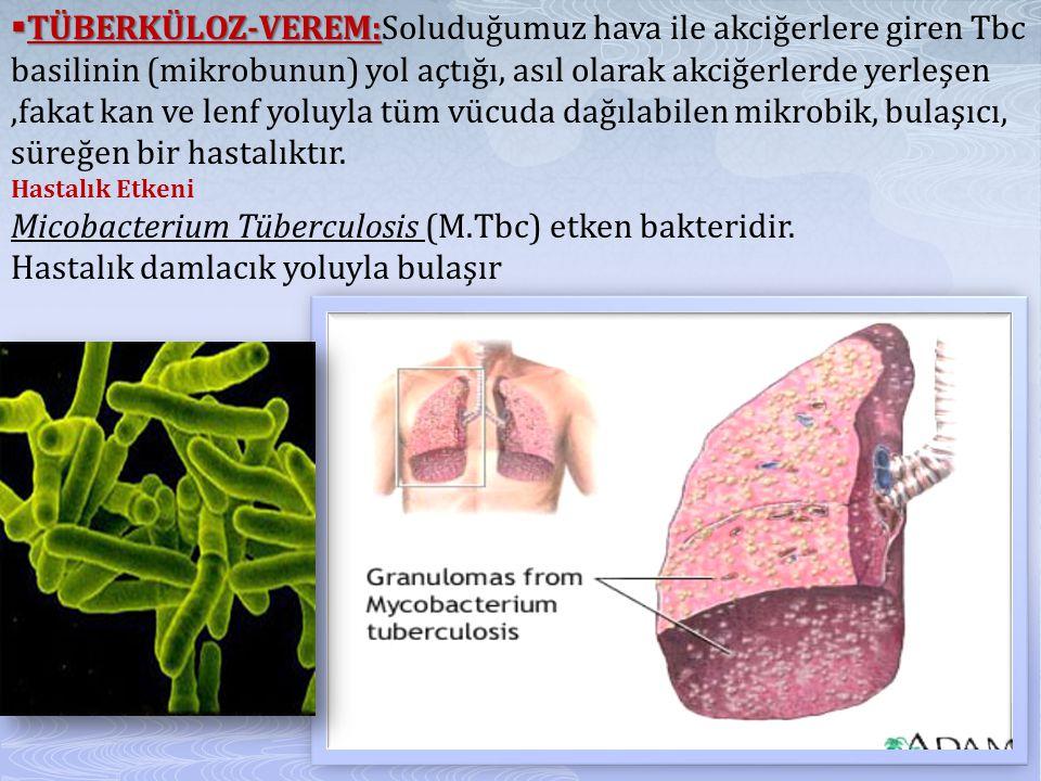  TÜBERKÜLOZ-VEREM:  TÜBERKÜLOZ-VEREM:Soluduğumuz hava ile akciğerlere giren Tbc basilinin (mikrobunun) yol açtığı, asıl olarak akciğerlerde yerleşen,fakat kan ve lenf yoluyla tüm vücuda dağılabilen mikrobik, bulaşıcı, süreğen bir hastalıktır.