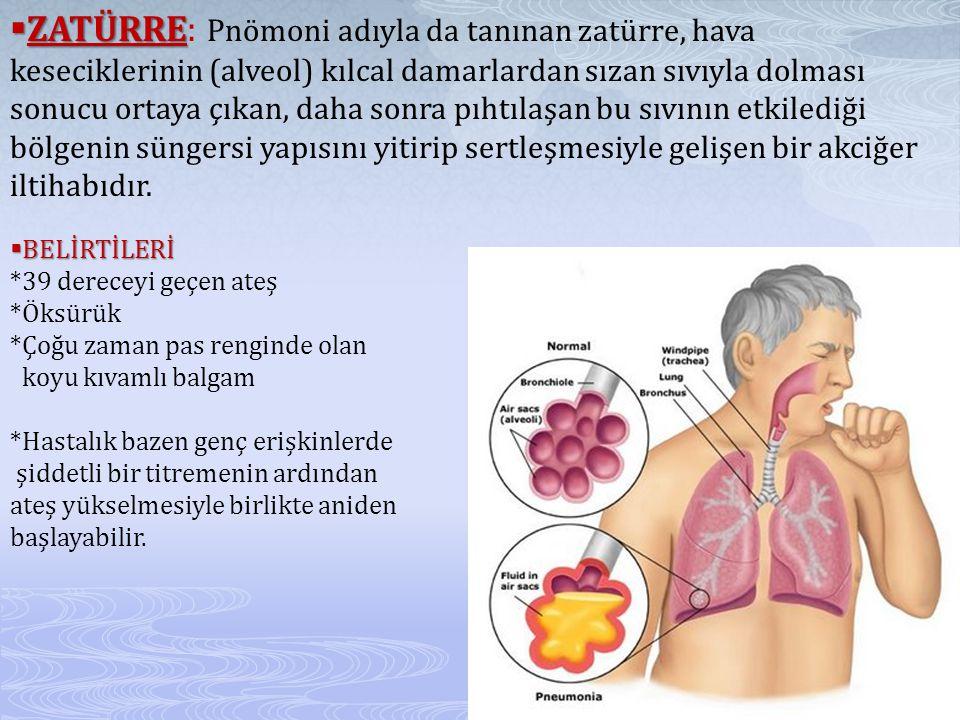  ZATÜRRE  ZATÜRRE: Pnömoni adıyla da tanınan zatürre, hava keseciklerinin (alveol) kılcal damarlardan sızan sıvıyla dolması sonucu ortaya çıkan, daha sonra pıhtılaşan bu sıvının etkilediği bölgenin süngersi yapısını yitirip sertleşmesiyle gelişen bir akciğer iltihabıdır.