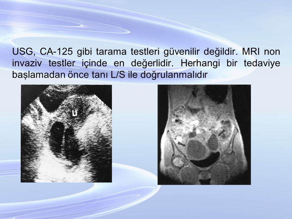 USG, CA-125 gibi tarama testleri güvenilir değildir. MRI non invaziv testler içinde en değerlidir. Herhangi bir tedaviye başlamadan önce tanı L/S ile