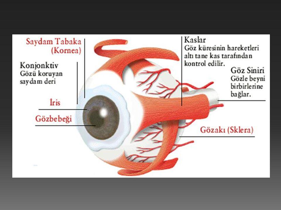  Göz küresinin optik eksene dik olarak şişkinleşmesiyle veya merceğin az kırıcı olmasıyla oluşan göz kusurudur.