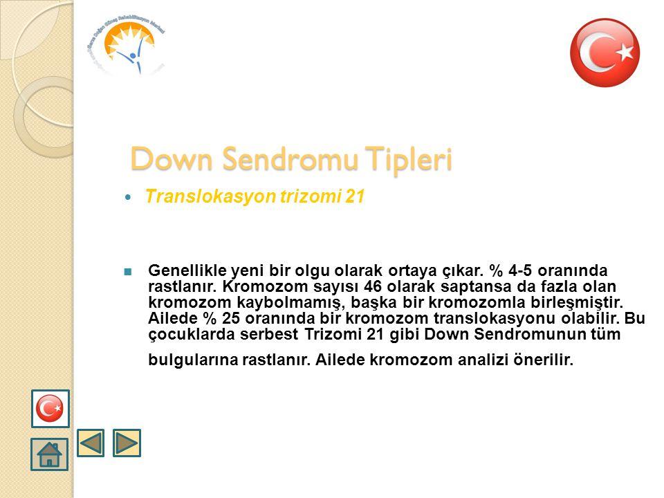  Serbest Trizomi 21  En fazla rastlanan tiptir. Tüm Down Sendromu olaylarının yaklaşık % 95 kadarı bu tiptir. Down Sendromunun tüm bulguları vardır.