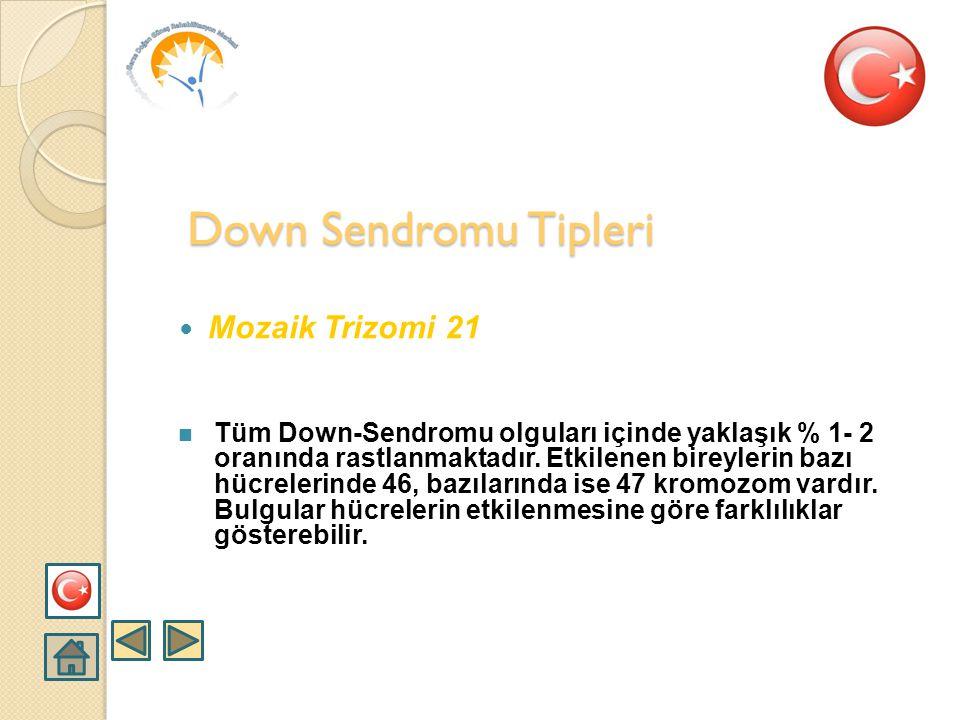  Translokasyon trizomi 21  Genellikle yeni bir olgu olarak ortaya çıkar. % 4-5 oranında rastlanır. Kromozom sayısı 46 olarak saptansa da fazla olan
