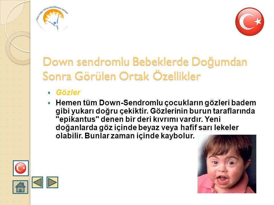  Yüz  Down-Sendromlu bir çocuğun yüzü genelde yuvarlakça ve basıktır. Down sendromlu Bebeklerde Do ğ umdan Sonra Görülen Ortak Özellikler