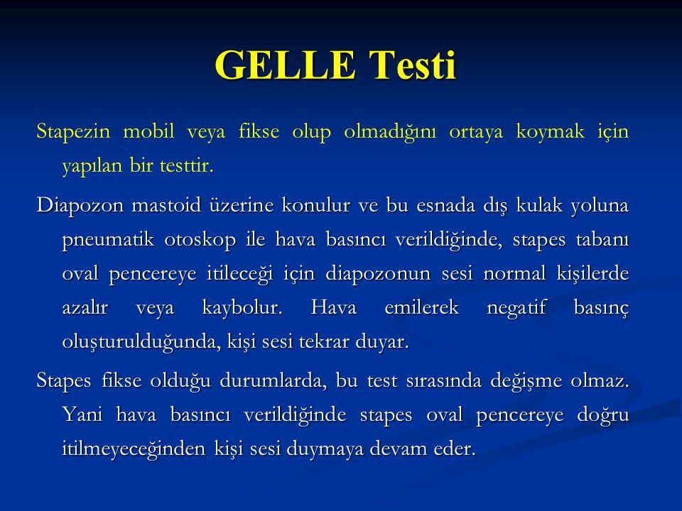 GELLE Testi Stapezin mobil veya fikse olup olmadığını ortaya koymak için yapılan bir testtir. Diapozon mastoid üzerine konulur ve bu esnada dış kulak