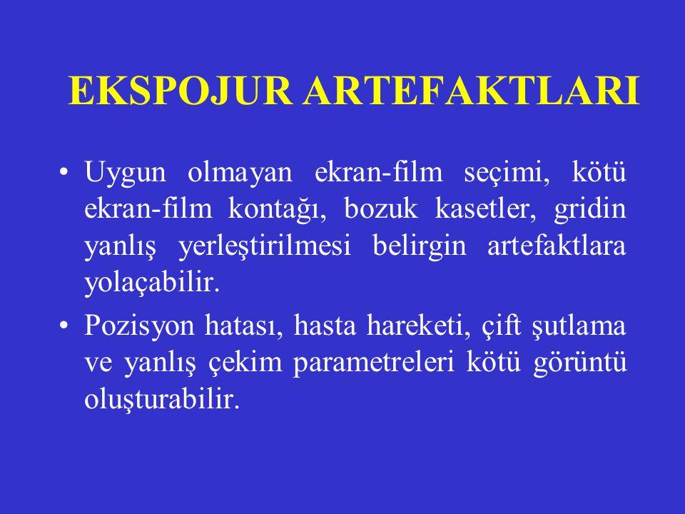 ARTEFAKTLAR •Artefakt, filmde primer x-ışını tarafından oluşturulmayan istenmeyen dansitedir. •Nedenleri bilinirse artefakt önlenebilir. •Belli başlı