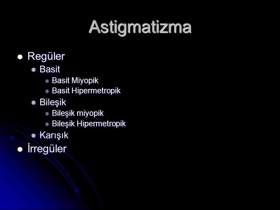 Astigmatizma  Regüler  Basit  Basit Miyopik  Basit Hipermetropik  Bileşik  Bileşik miyopik  Bileşik Hipermetropik  Karışık  İrregüler
