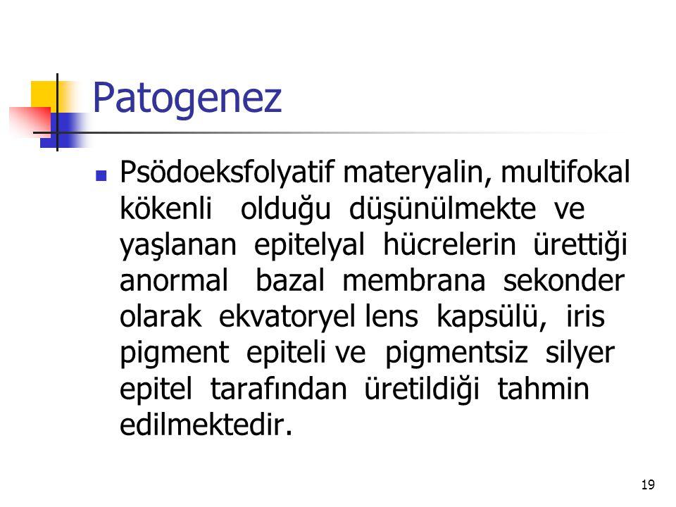 Patogenez  Psödoeksfolyatif materyalin, multifokal kökenli olduğu düşünülmekte ve yaşlanan epitelyal hücrelerin ürettiği anormal bazal membrana sekon