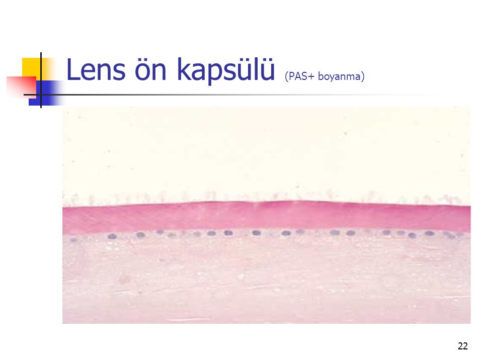 Lens ön kapsülü (PAS+ boyanma) 22