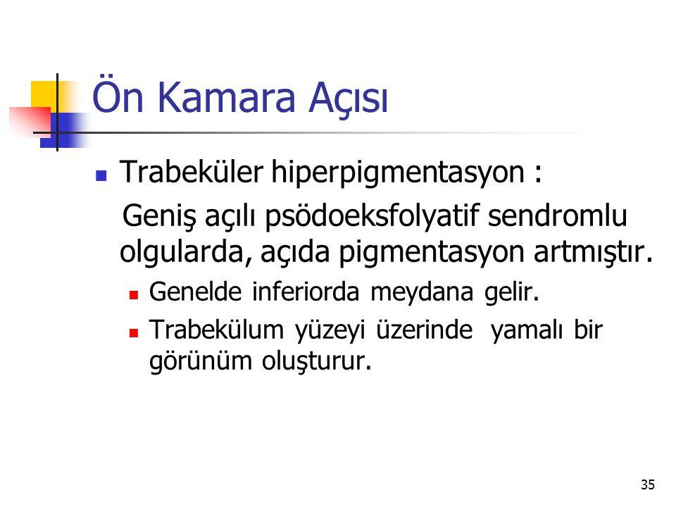 Ön Kamara Açısı  Trabeküler hiperpigmentasyon : Geniş açılı psödoeksfolyatif sendromlu olgularda, açıda pigmentasyon artmıştır.  Genelde inferiorda