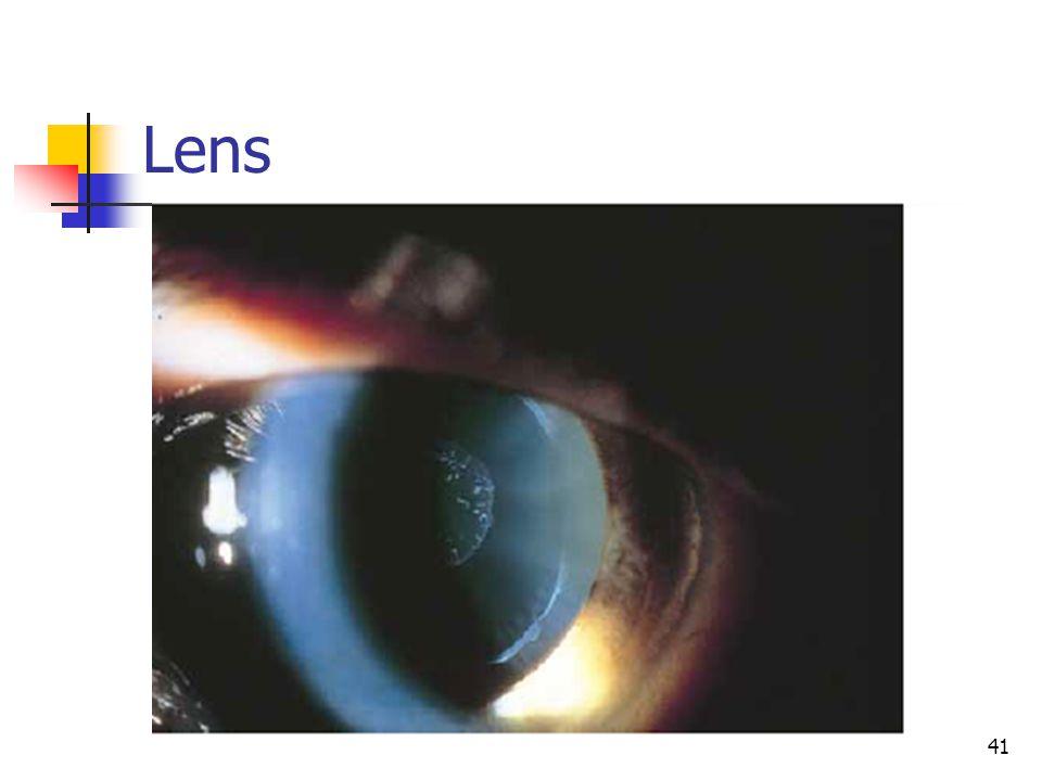 Lens 41