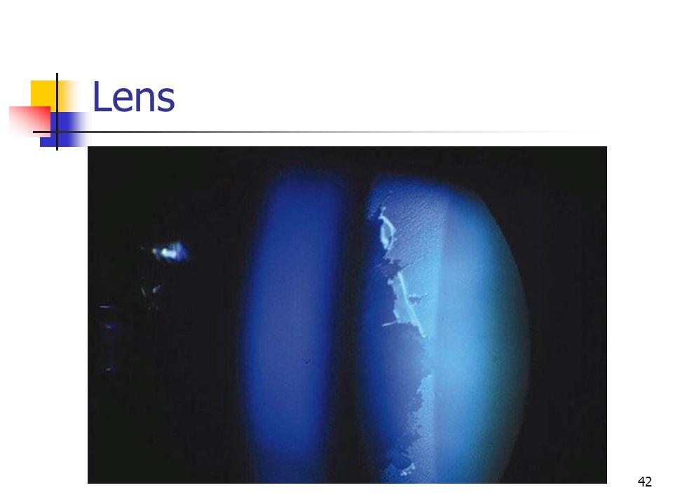 Lens 42