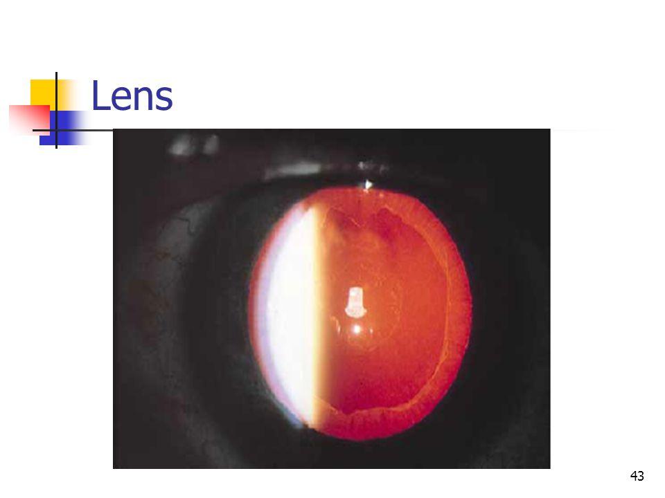 Lens 43