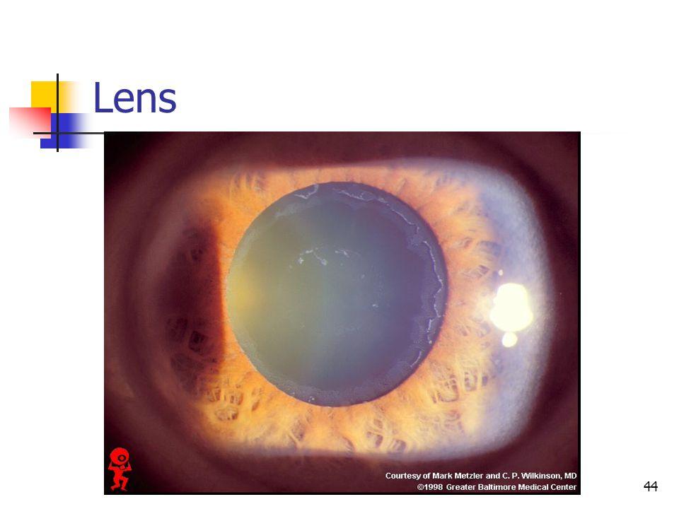 Lens 44