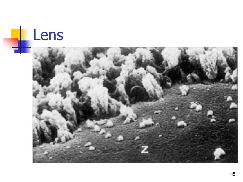 Lens 45