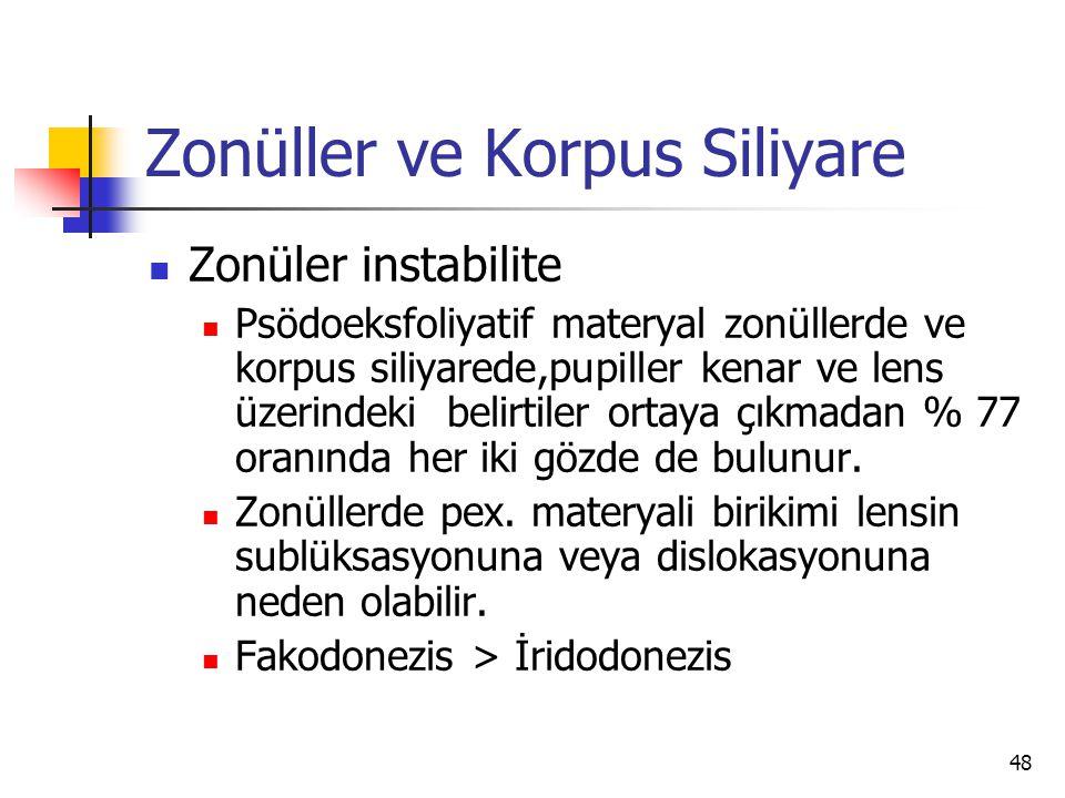 Zonüller ve Korpus Siliyare  Zonüler instabilite  Psödoeksfoliyatif materyal zonüllerde ve korpus siliyarede,pupiller kenar ve lens üzerindeki belir