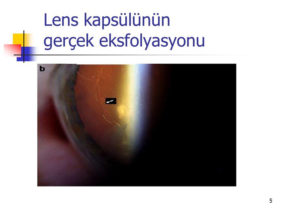 Lens kapsülünün gerçek eksfolyasyonu 5