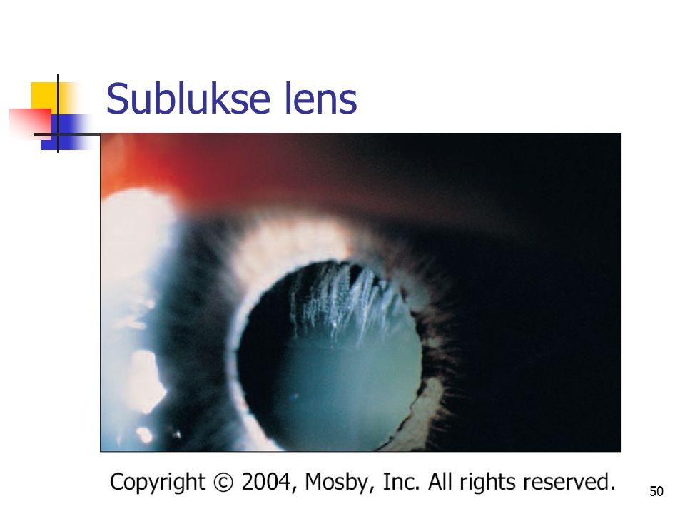 Sublukse lens 50