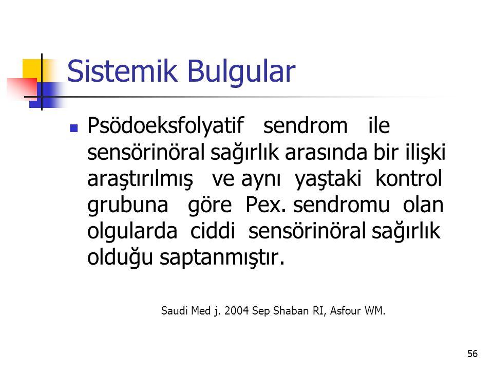 Sistemik Bulgular  Psödoeksfolyatif sendrom ile sensörinöral sağırlık arasında bir ilişki araştırılmış ve aynı yaştaki kontrol grubuna göre Pex. send