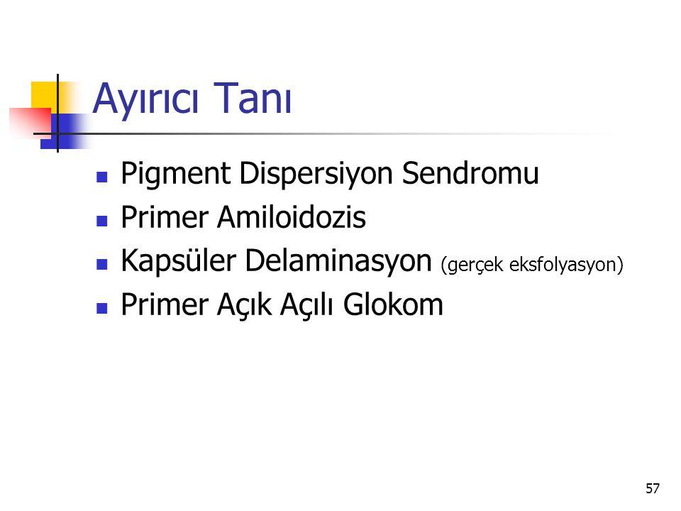 Ayırıcı Tanı  Pigment Dispersiyon Sendromu  Primer Amiloidozis  Kapsüler Delaminasyon (gerçek eksfolyasyon)  Primer Açık Açılı Glokom 57