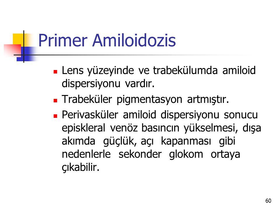 Primer Amiloidozis  Lens yüzeyinde ve trabekülumda amiloid dispersiyonu vardır.  Trabeküler pigmentasyon artmıştır.  Perivasküler amiloid dispersiy