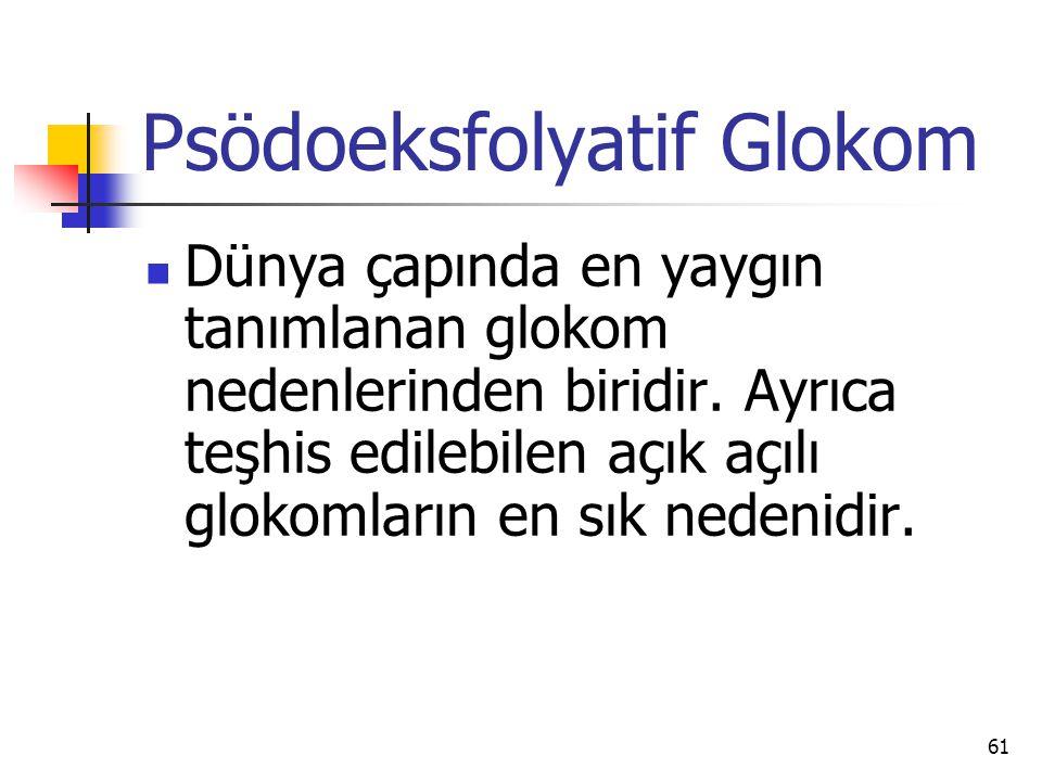 Psödoeksfolyatif Glokom  Dünya çapında en yaygın tanımlanan glokom nedenlerinden biridir. Ayrıca teşhis edilebilen açık açılı glokomların en sık nede