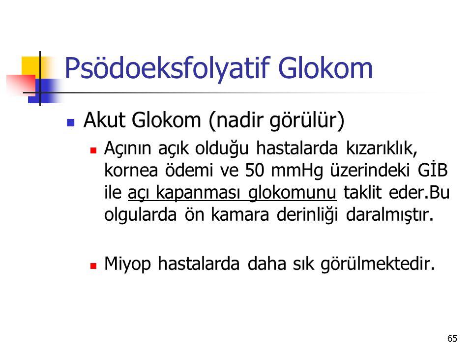 Psödoeksfolyatif Glokom  Akut Glokom (nadir görülür)  Açının açık olduğu hastalarda kızarıklık, kornea ödemi ve 50 mmHg üzerindeki GİB ile açı kapan
