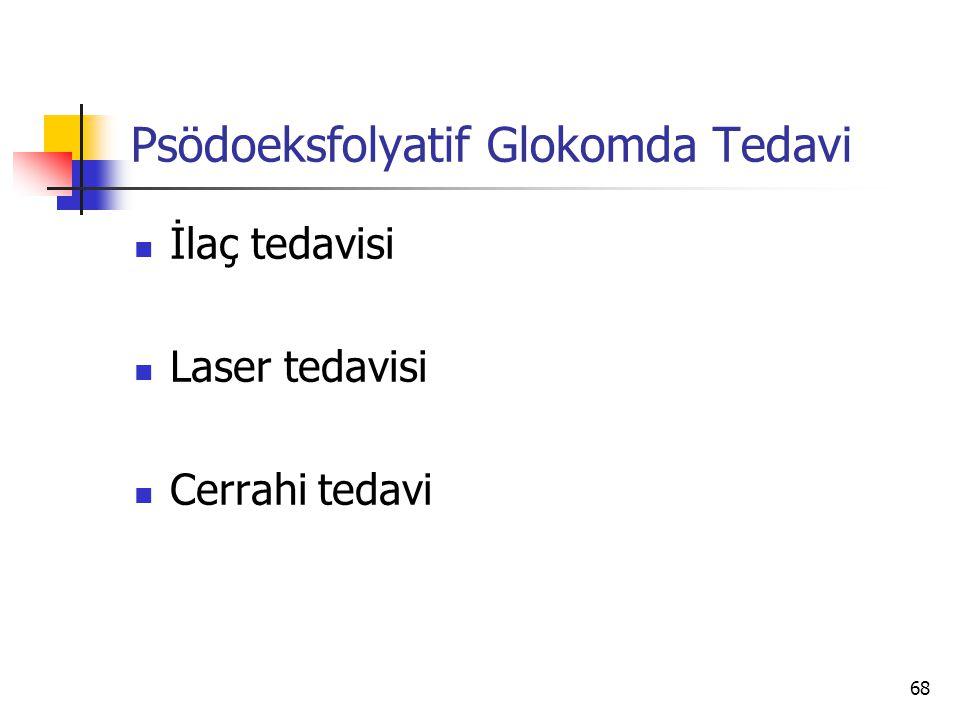 Psödoeksfolyatif Glokomda Tedavi  İlaç tedavisi  Laser tedavisi  Cerrahi tedavi 68