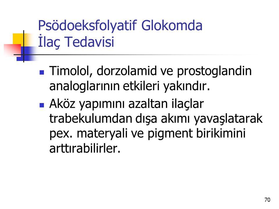 Psödoeksfolyatif Glokomda İlaç Tedavisi  Timolol, dorzolamid ve prostoglandin analoglarının etkileri yakındır.  Aköz yapımını azaltan ilaçlar trabek