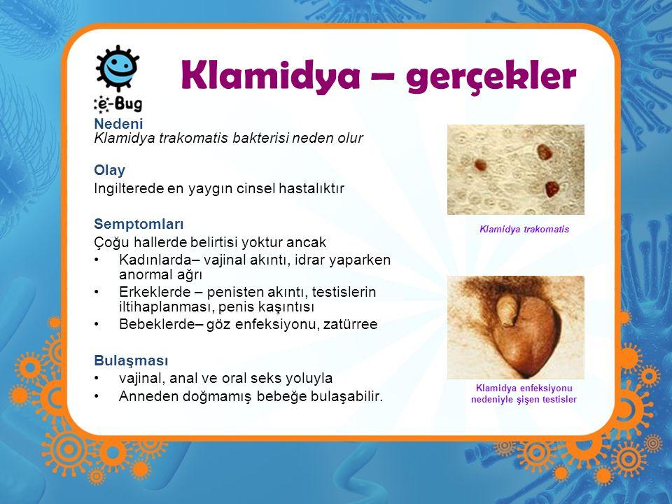 Klamidya – gerçekler Nedeni Klamidya trakomatis bakterisi neden olur Olay Ingilterede en yaygın cinsel hastalıktır Semptomları Çoğu hallerde belirtisi