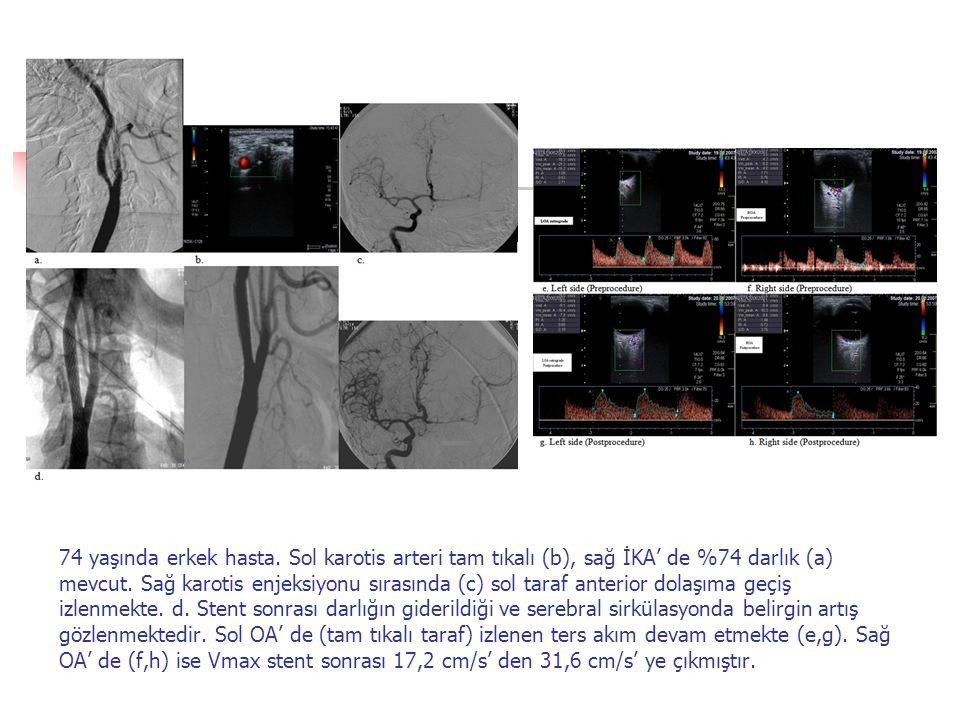 74 yaşında erkek hasta. Sol karotis arteri tam tıkalı (b), sağ İKA' de %74 darlık (a) mevcut. Sağ karotis enjeksiyonu sırasında (c) sol taraf anterior