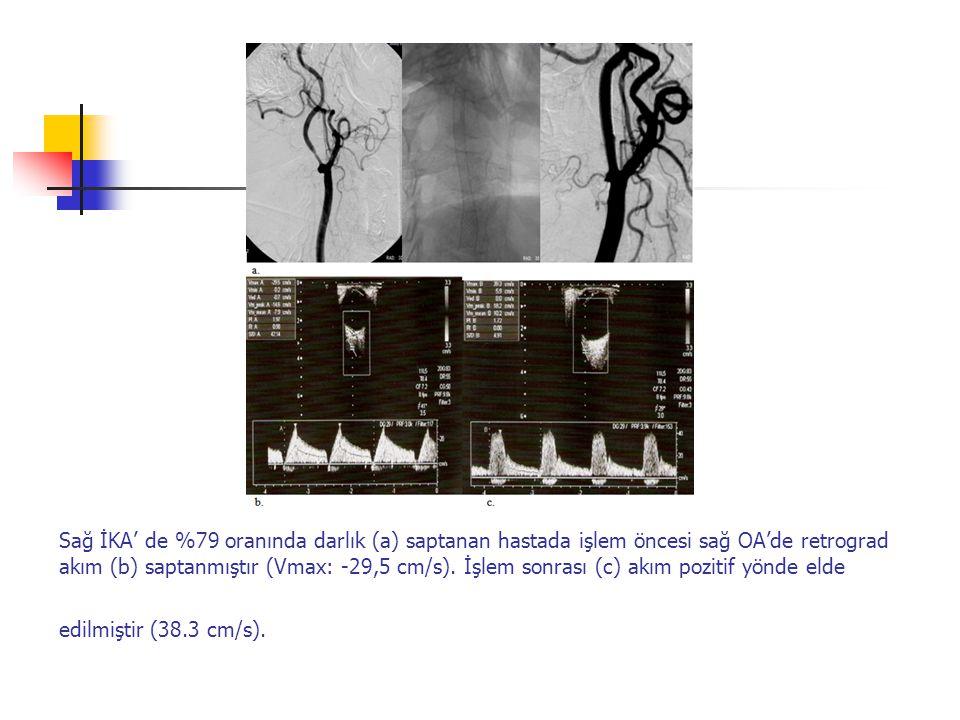 Sağ İKA' de %79 oranında darlık (a) saptanan hastada işlem öncesi sağ OA'de retrograd akım (b) saptanmıştır (Vmax: -29,5 cm/s). İşlem sonrası (c) akım