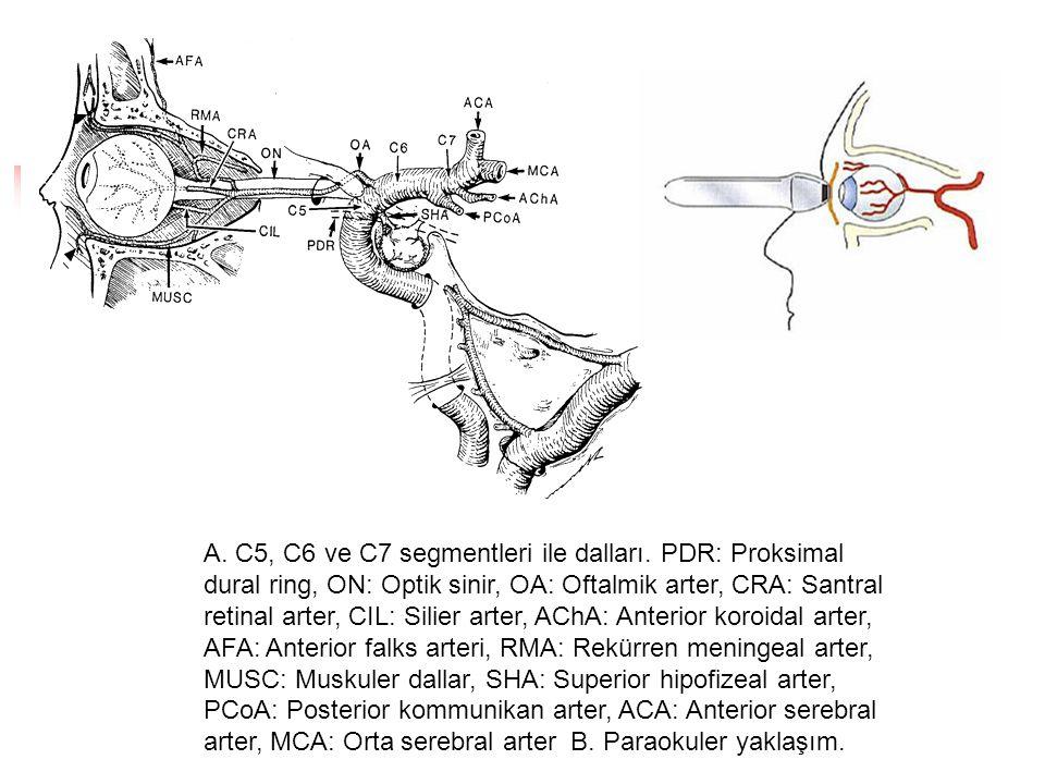 A. C5, C6 ve C7 segmentleri ile dalları. PDR: Proksimal dural ring, ON: Optik sinir, OA: Oftalmik arter, CRA: Santral retinal arter, CIL: Silier arter