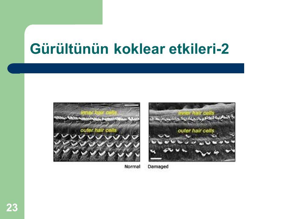 Gürültünün koklear etkileri-2 23