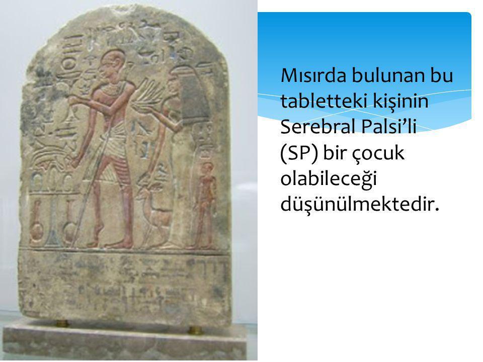 Mısırda bulunan bu tabletteki kişinin Serebral Palsi'li (SP) bir çocuk olabileceği düşünülmektedir.