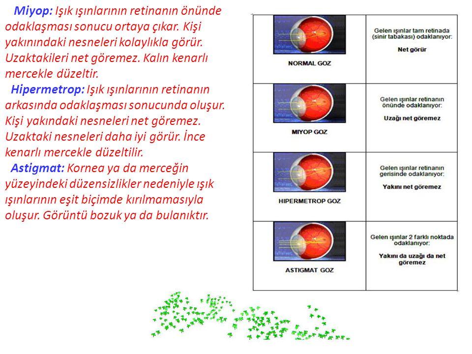 Miyop: Işık ışınlarının retinanın önünde odaklaşması sonucu ortaya çıkar. Kişi yakınındaki nesneleri kolaylıkla görür. Uzaktakileri net göremez. Kalın