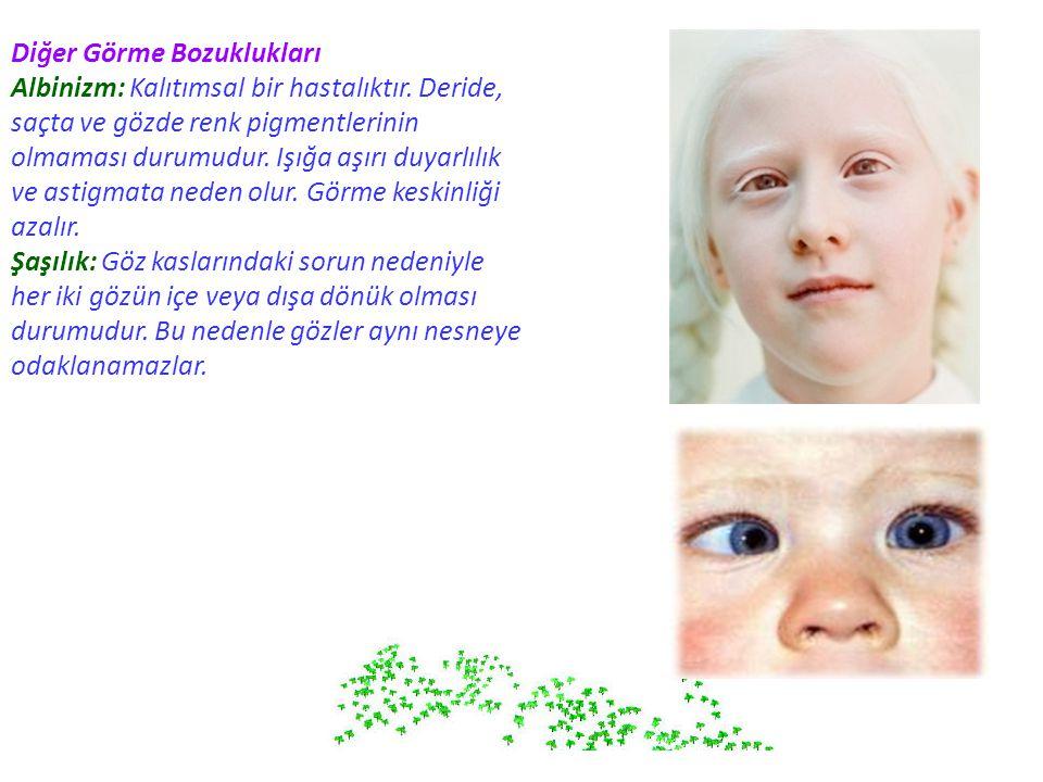 Diğer Görme Bozuklukları Albinizm: Kalıtımsal bir hastalıktır. Deride, saçta ve gözde renk pigmentlerinin olmaması durumudur. Işığa aşırı duyarlılık v