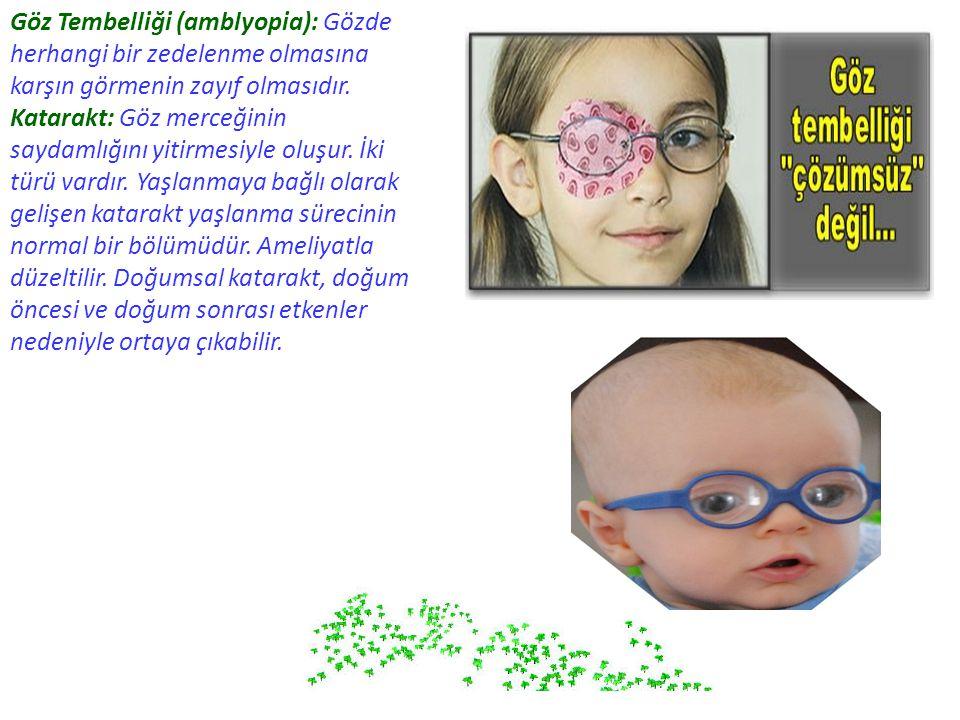 Göz Tembelliği (amblyopia): Gözde herhangi bir zedelenme olmasına karşın görmenin zayıf olmasıdır. Katarakt: Göz merceğinin saydamlığını yitirmesiyle