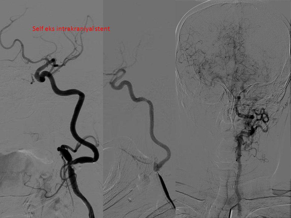Self eks intrakraniyal stent