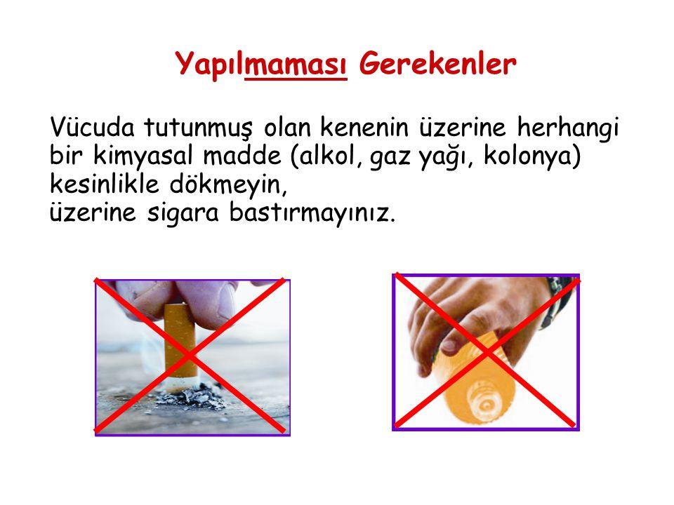 Yapılmaması Gerekenler Vücuda tutunmuş olan kenenin üzerine herhangi bir kimyasal madde (alkol, gaz yağı, kolonya) kesinlikle dökmeyin, üzerine sigara