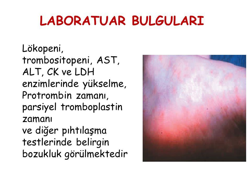LABORATUAR BULGULARI Lökopeni, trombositopeni, AST, ALT, CK ve LDH enzimlerinde yükselme, Protrombin zamanı, parsiyel tromboplastin zamanı ve diğer pı