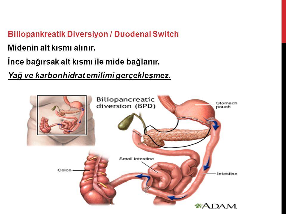 Biliopankreatik Diversiyon / Duodenal Switch Midenin alt kısmı alınır.