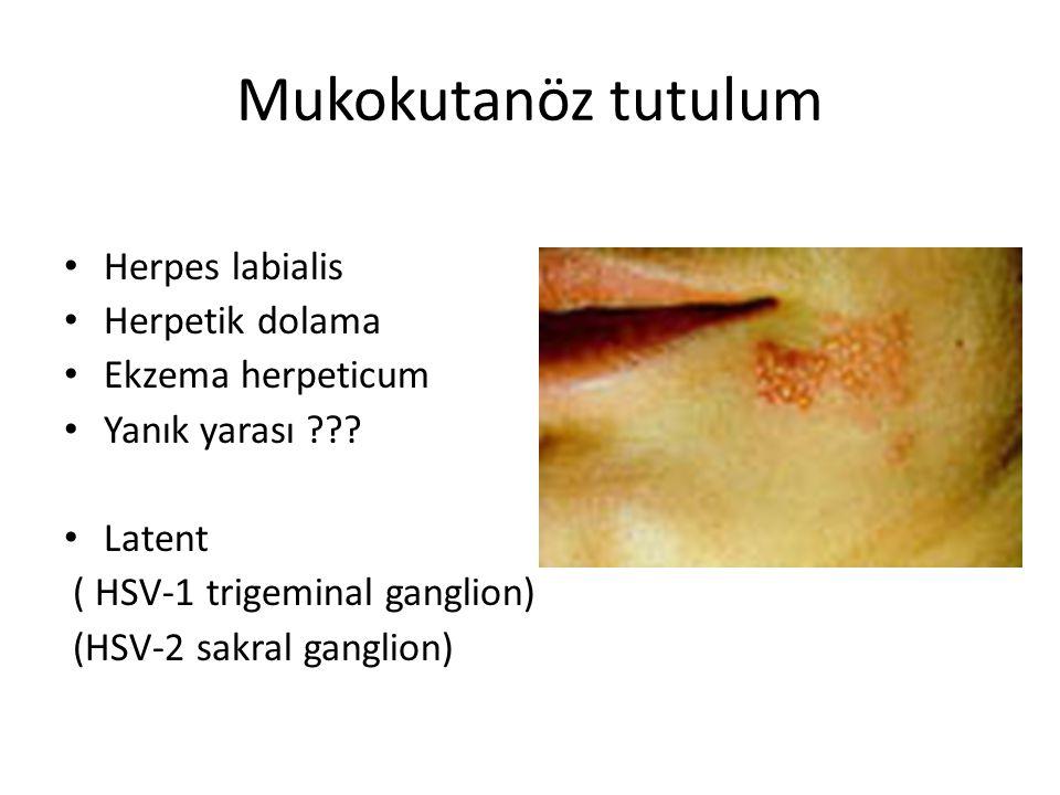 Mukokutanöz tutulum • Herpes labialis • Herpetik dolama • Ekzema herpeticum • Yanık yarası ??.