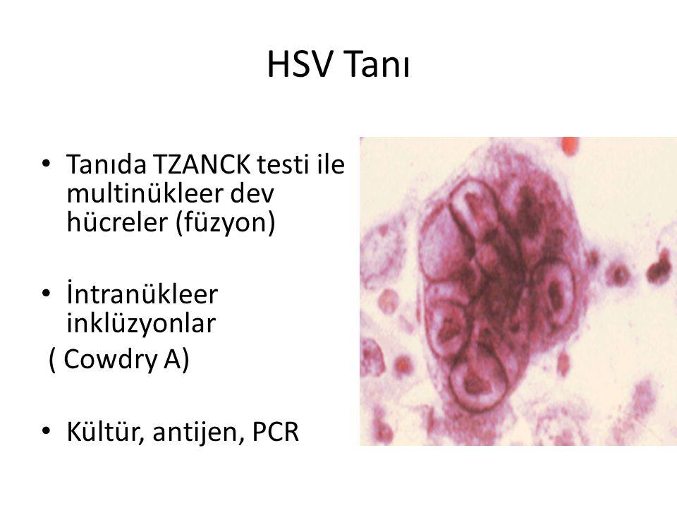 HSV Tanı • Tanıda TZANCK testi ile multinükleer dev hücreler (füzyon) • İntranükleer inklüzyonlar ( Cowdry A) • Kültür, antijen, PCR