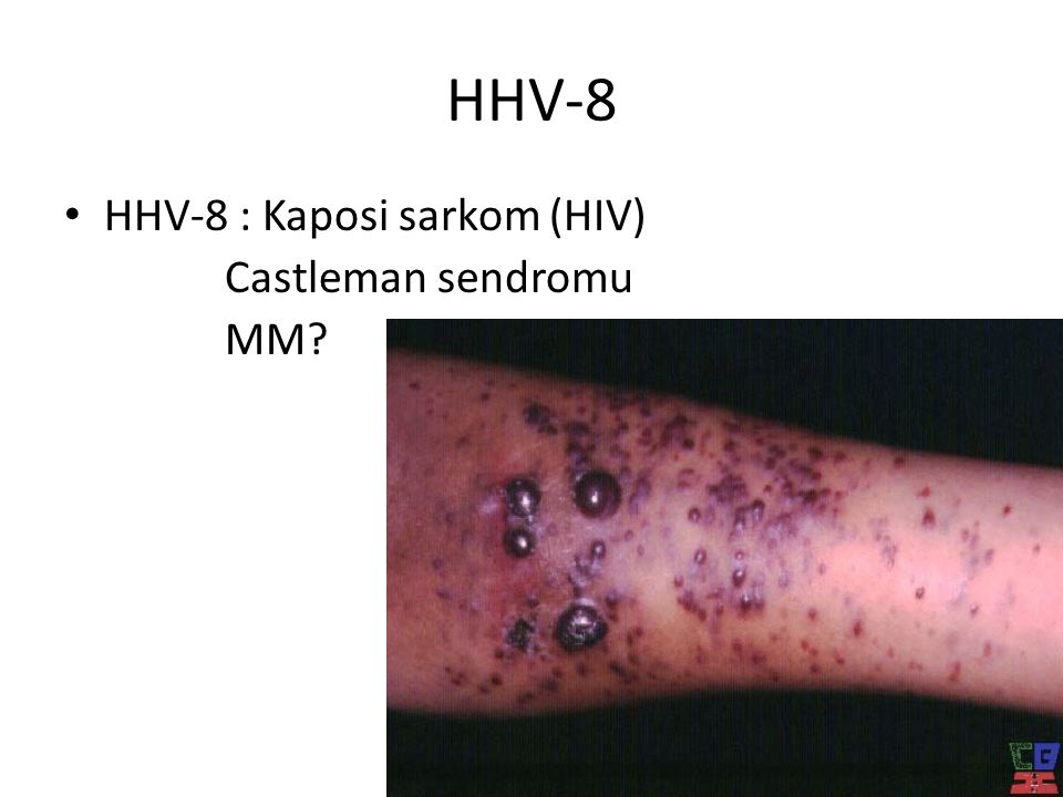 HHV-8 • HHV-8 : Kaposi sarkom (HIV) Castleman sendromu MM?