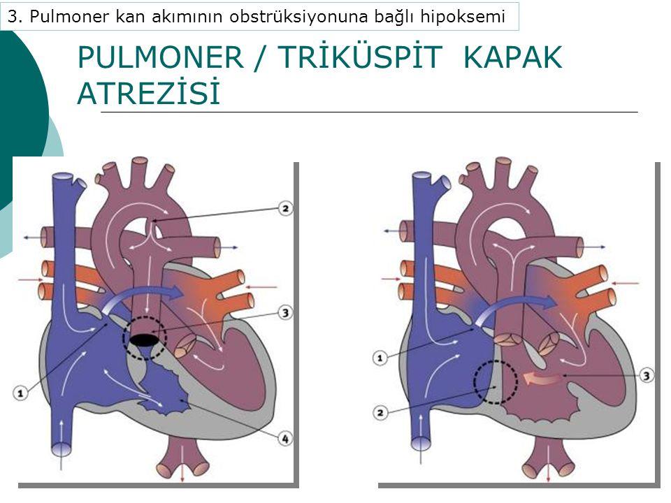 PULMONER / TRİKÜSPİT KAPAK ATREZİSİ 3. Pulmoner kan akımının obstrüksiyonuna bağlı hipoksemi